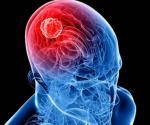 El virus del zika puede ayudar a combatir el tumor cerebral