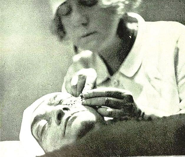 Suzanne Noël, pionera de la cirugía plástica