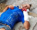 Sufre herida con botella. Participa en supuesta riña callejera