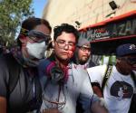 Prohíbe Chile balines de goma tras 200 ciegos